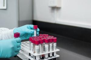 Romark test tube labels4